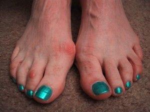 Как вылечить вальгусную деформацию большого пальца на ноге