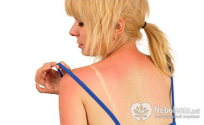 Какие болезни нас подстерегают летом?