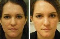 Какие бывают крема для жирной кожи