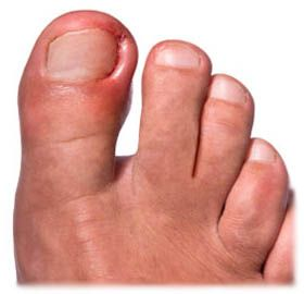 Какие есть методы лечения вросшего ноготя?