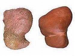 Какие симптомы у алкогольного гепатита