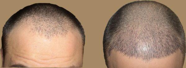 Каковы цены на пересадку волос