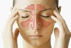 Капли в нос при гайморите с антибиотиком, антигистаминные, для промывания