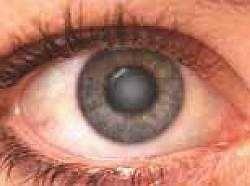 Катаракта: симптомы, лечение, причины, операции