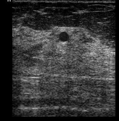 Киста молочной железы женский