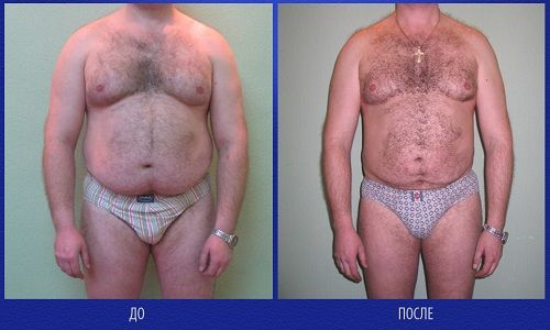 фото живота мужчины до и после