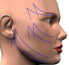 Круговая подтяжка лица
