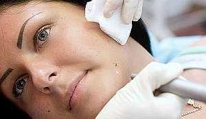 Лазерное удаление бородавок: лазером безболезненно и быстро