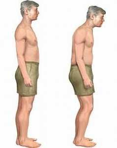 Лечение болезни бехтерева, симптомы у женщин и мужчин, причины заболевания