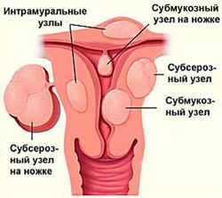 Лечение фибромиомы матки яичник