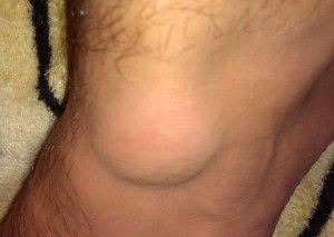 Лечение гигромы коленного сустава