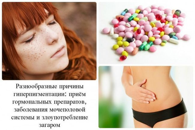 Лечение хлоазмы традиционными и народными методами