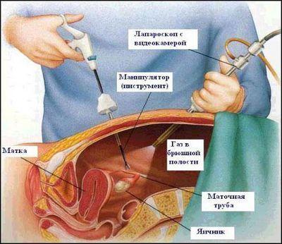 Лечение кисты яичника нога