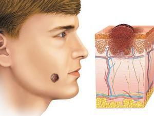 Лечение пигментного невуса или как предотвратить образование злокачественной опухоли?