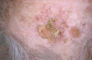 Локализация рака кожи — где, кроме области головы и шеи, можно столкнуться с проблемой
