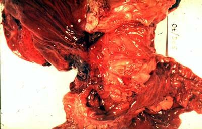 Метастазы - опасность повсюду рак