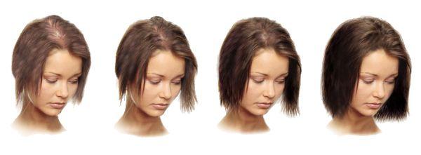 Мезотерапия головы для роста волос