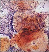 Нарушение микрофлоры влагалища
