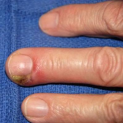 Нарывает палец на руке что делать покраснение