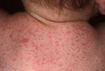 &Nbsp- цитомегаловирус: лечить или не лечить?