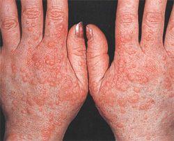 Нейродермит на руках — причины появления, признаки и лечение заболевания