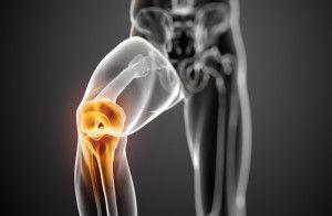Нестабильность в области коленного сустава