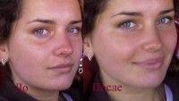 Нужен ли жирный крем для сухой кожи лица