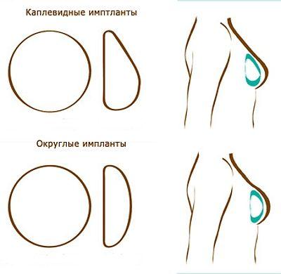 Нужно ли менять импланты после маммопластики