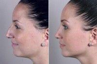 Особенности реабилитации после ринопластики носа