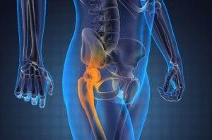 Отчего возникает боль в тазобедренном суставе и как с ней справляться?