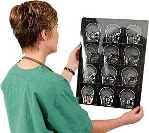 Отек головного мозга: симптомы, причины, последствия