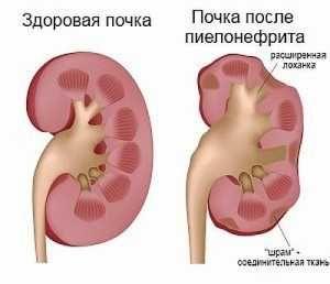 Пиелонефрит: симптомы, лечение, причины