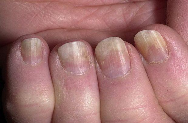 Почему ногти на пальцах рук отходят от ногтевого ложа