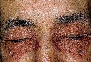 Почему возникает нейродермит на лице? Симптомы и особенности терапии