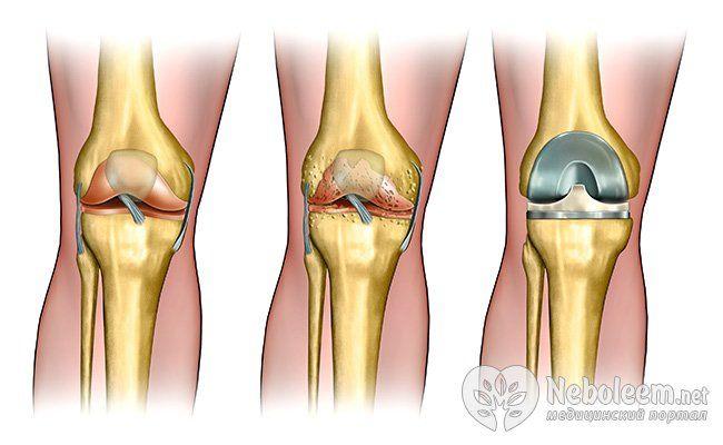 Польза при артрите