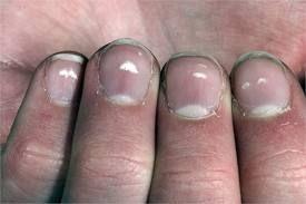 Причины белых пятен на ногтях рук, способы избавления от них