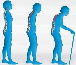 Причины и симптомы остеопороза, первые признаки