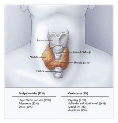 Причины и симптомы тиреотоксикоза микроб