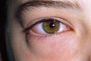 Причины мешков, отеков под глазами, как избавиться от отеков