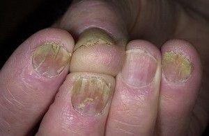 Причины появления болезней ногтей на руках, симптомы и способы лечения