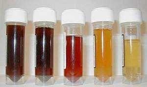 Причины появления крови в моче у женщин и мужчин