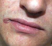 Причины появления трещин в уголках губ, лечение заед в углах рта