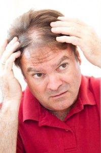 Причины выпадения волос у мужчин, симптомы, способы лечения