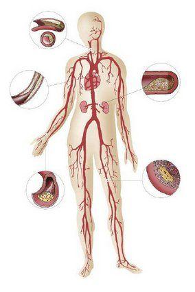 Принципы лечения атеросклероза