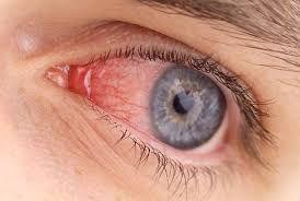 Признаки аллергии на глазах, методы диагностики и лечения