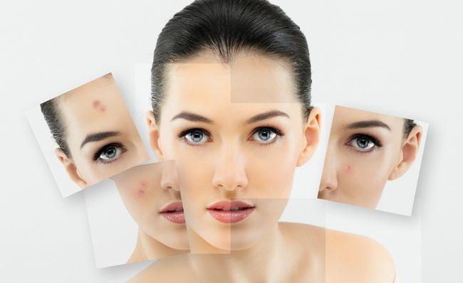 Проблемы со здоровьем и связанные с ними высыпания на лице
