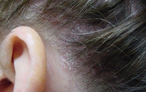 Псориаз головы начальная стадия фото