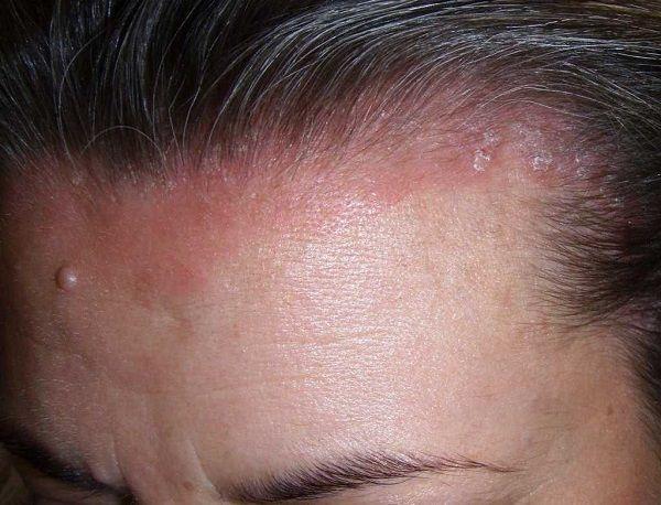 Симптомы псориаза головы
