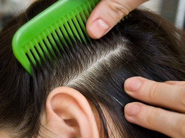 Лечение псориаза головы