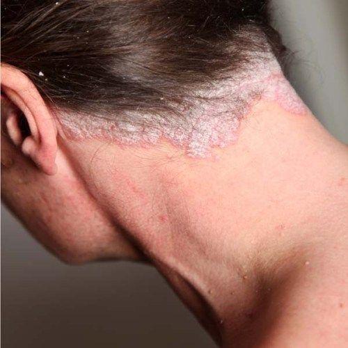 Псориаз на коже головы